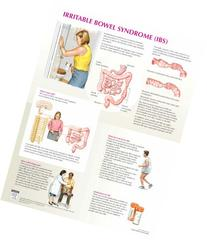 Irritable Bowel Syndrome Chart